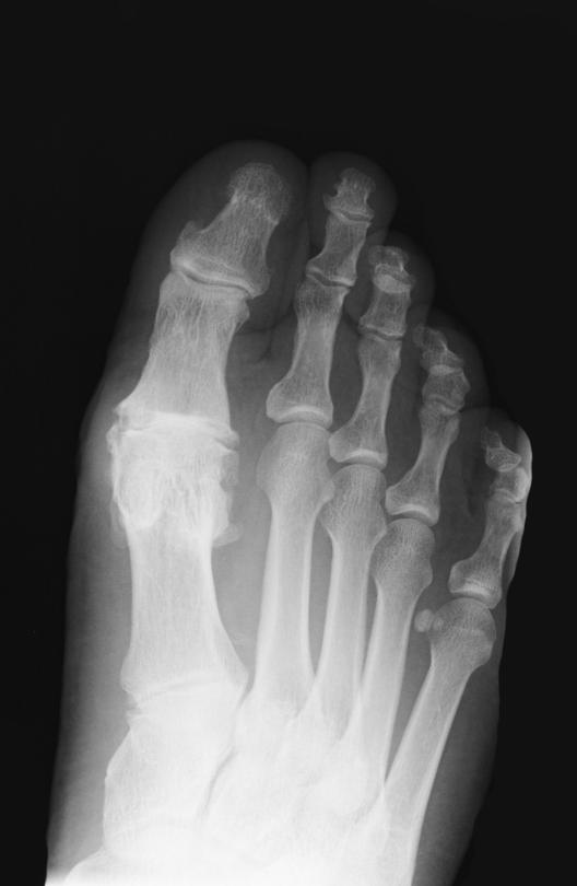 arthrose operation